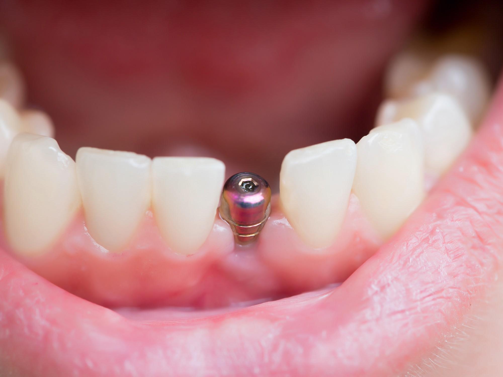 Implant dentaire : qu'est-ce que c'est ?